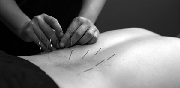 Terry Connell, Acupuncturist, Specializing in Low back and Sciatica pain